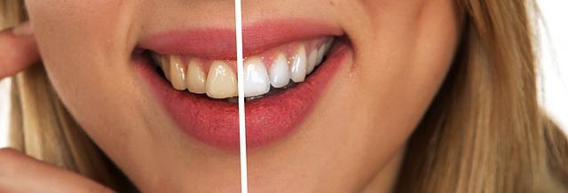 odstín zubů.jpg